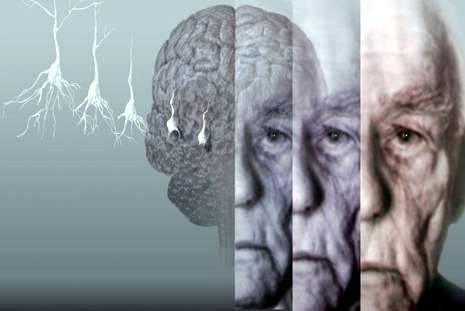 Proteína pode ser a chave para o tratamento de várias doenças neurodegenerativas